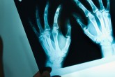 Doctor holding up x-ray for rehabilitation