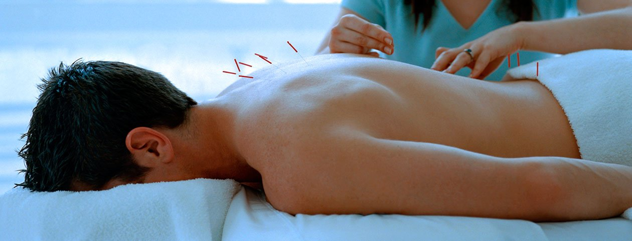 Man getting acupuncture vs chiropractic treatment