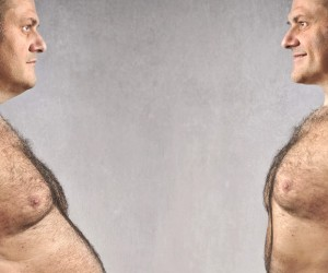 Man before and after roux-en-y gastric bypass procedure