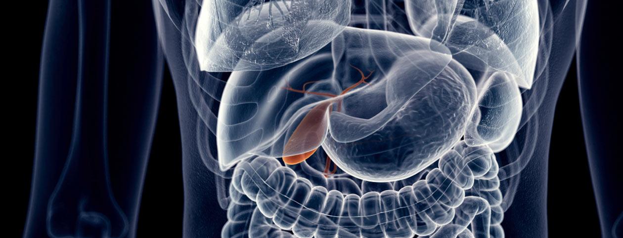 Gallbladder-Diet--Post-Surgery-Menu-and-Meal-Plan