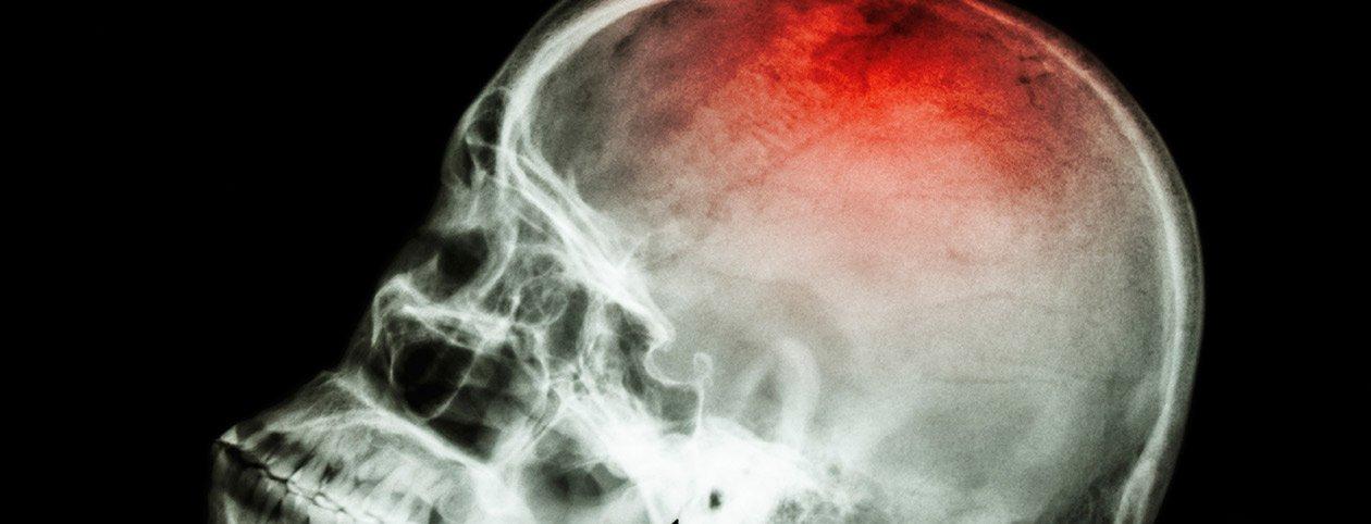 Stroke-Recovery-Guide--Ishemic,-Hemorrhagic,-TIA-Strokes