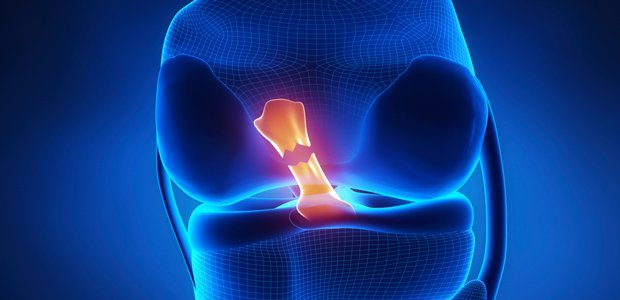 Torn ACL requires sports physical therapy