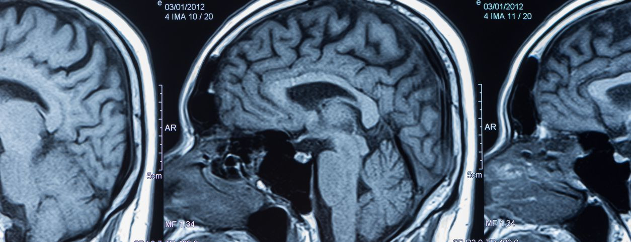 Brain scan showing hippocampus function and possibly bipolar disorder