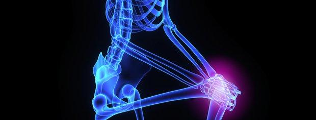 knee-pain-x-ray